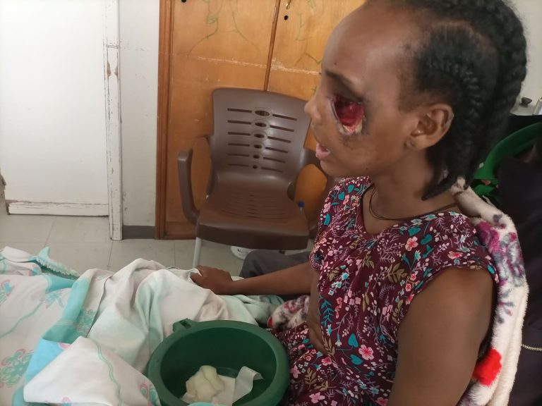 Beriha Gebray's story: An Eritrean soldier shot her and destroyed her eyes.